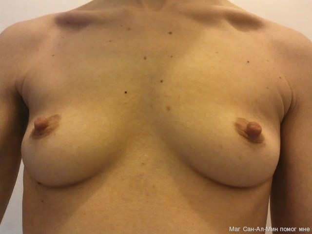 Пожалуйста помогите увеличить грудь