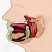 Опухоли глоточного отростка околоушной слюнной железы