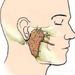 Киста околоушной слюнной железы