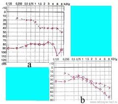 Şəkil 2. Xəstə M. (qarışıq növ otoskleroz): əməliyyata qədər qeyd edilən sümük-hava keçiriciliyi intervalı (a) əməliyyatdan sonra praktiki olaraq ləğv edilmişdir (b).