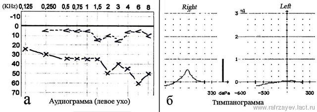 Яремно-барабанная параганглиома: некоторые вопросы диагностики и лечения больных