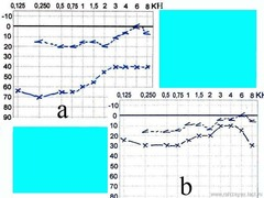 Şəkil 4. Xəstə Q. (timpanal növ otoskleroz): əməliyyata qədər qeyd edilən sümük-hava keçiriciliyi intervalı (a) əməliyyatdan sonra praktiki olaraq ləğv edilmişdir (b).