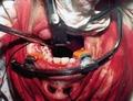 Операционная рана после удаления опухоли