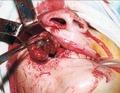 Момент удаления опухоли