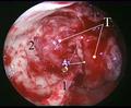Резекция задней стенки верхнечелюстной  пазухи:  Т – опухоль выполняет крыловидно-нёбную ямку; 1 – внутренняя поверхность перпендикулярной части         нёбной кости 2 – задняя стенка верхнечелюстной пазухи резецирована; 3 – клиновидно-небная вырезка