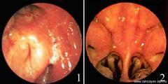 Эндоскопия носоглотки