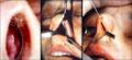 Рис.10. Вначале производится циркулярный вестибулярный разрез в полости носа со сквозным рассечением его перегородки через колумеллу.