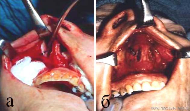 Кисты придаточных пазух носа - Лор врач