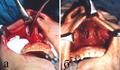 Рис.12. После отсечения мягких тканей вдоль грушевидного отверстия (apertura piriformis) с обеих сторон, ткани наружного носа отсепарированы до нижнего и внутреннего края глазниц (а), достигнут доступ средней третьей части лица (б).