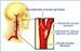 Каротидная хемодектома