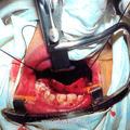 Вид операционной раны после завершения отсепаровки мукопериостального лоскута твёрдого нёба и смещения его кзади (для обеспечения резекции заднего конца нёбной кости, большей части сошника и задневнутреннего края большого нёбного отверстия