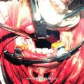 Вид операционной раны в момент задней тампонады носа у больного после удаления I категории опухоли, доступом через нёба