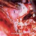 Вид операционной раны после удаления тела клиновидной кости (микроскоп) (T-опухоль проникает в подвисочную ямку; 1-латеральный крыловидный отросток клиновидной кости; 2-F. ovale; 3-F. spinosum)