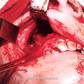 б) Вид операционной раны после резекции костей лицевого скелета при выполнении модифицированной операции по Денкеру у больного с ЮАН.