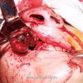 в) Момент удаления опухоли у больного со II категорией опухоли, доступом через верхнечелюстную пазуху и полость носа с проведением разреза под губой.