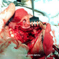 г) Вид операционной раны в момент проведения отсепаровки опухоли.