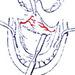 Базально - распространенная форма