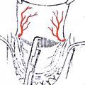 б) резекция заднего края нёбной кости и задне-внутреннего края большого нёбного отверстия