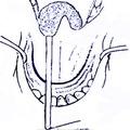 в) ретротранспозиция мягкого нёба при помощи резинового катетера