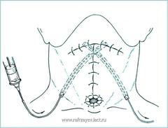 Рис.2. Схематическое изображение методики дренирования и промывания раны