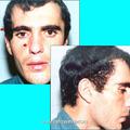Фотография больного после удаления интракраниально распространяющейся опухоли (IVа категория): отмечается мало заметный рубец на лице и незначительная деформация височной области справа.