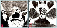 КТ больного с интракраниально - и параселлярно распространенной ЮАН (IVа категория)
