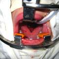 Положение головы больного на операционном столе.