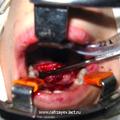 Отсепаровка мукопериостального лоскута после проведения подковообразного разреза слизистой оболочки твёрдого нёба.