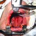 Произведена компрессионная тампонада послеоперационных углублений, образованных на боковых стенках глотки.