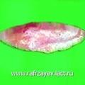 Резецированный костно-хрящевой сегмент, формирующий горбинку спинки носа.