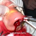 Отсепаровка кожи от костно-хрящевых структур наружного носа: большим пальцем левой руки постоянно контролируется процесс иссечения тканей ножницами.