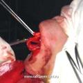 Резекция высокой спинки носа до уровня переносицы.