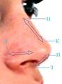 Хирургическая анатомия наружного носа (общая характеристика).
