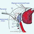 Обзор кавернозного синуса и отводящего нерва (VI) после отсепаровки и смешения интракраниального отростка опухоли: прерывистой линией обозначена проекция ВСА после выхода её из кавернозного синуса.