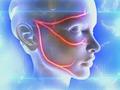 Особенности ЛФК при неврите лицевого нерва
