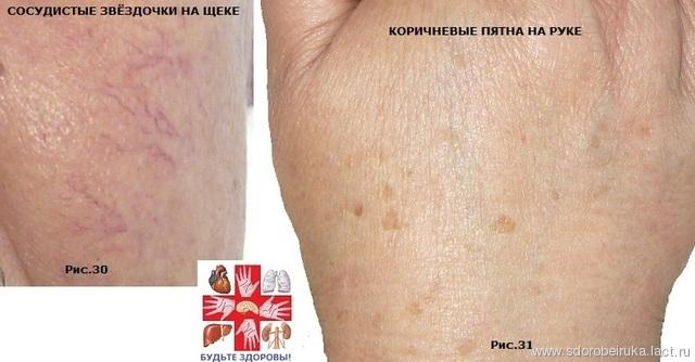Результаты лечения гепатита с софосбувиром