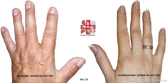 Узнать свою болезнь по руке 22